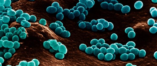 Rimuovere germi e batteri dalle superfici